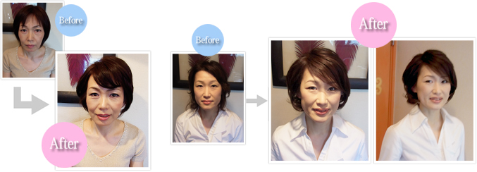 before-after02